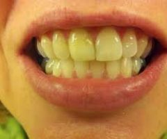 How to Get Rid of Yellow Teeth Naturally .html