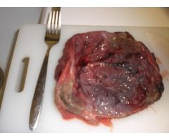 Doctors Have Warned Women Against Eating Their Placenta .html