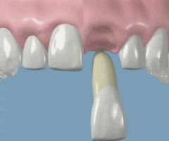 Simple Ways to Replant Your Tooth When Avulsed.html
