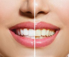 These Things Can Make Your Teeth Turn Yellow .html